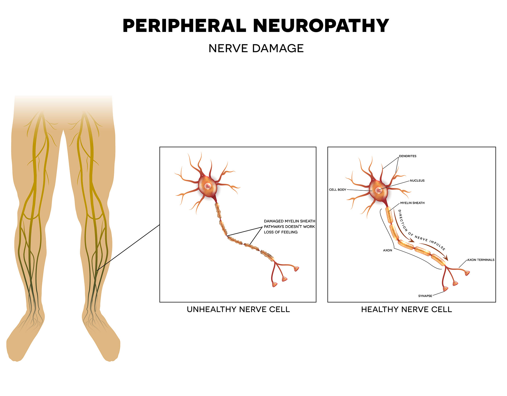 Image result for neuropathy
